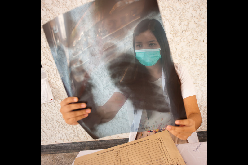 A radiologist holds the chest x-ray of a TB patient diagnosed by IOM in Mae Hong Son. © Mikel Flamm 2013