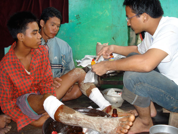 BANDAGING UP. An IOM medical staff applies medicines and bandages to the badly wounded legs of a cyclone survivor in a village in the Delta. © IOM 2008 - MMM0198