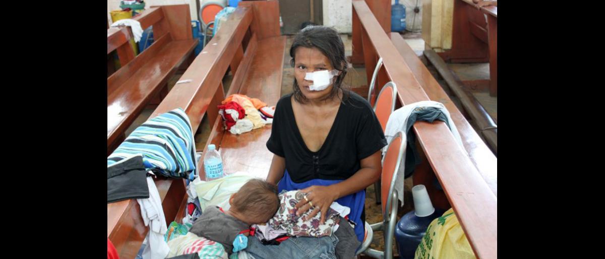 Los heridos, como esta mujer, también se han refugiado en la iglesia redentorista de Tacloban, convertida en un centro de refugio para desplazados. © OIM 2013 (Fotografía de Joe Lowry)